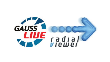 Suite GaussLive / Radial Viewer - Beyond Traditional BI (más allá de la Inteligencia de Negocios tradicional)